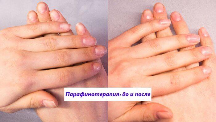 парафинотерапия - вид рук до и после процедуры