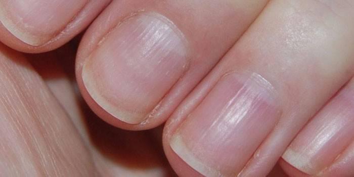 Как вылечить волнистые ногти