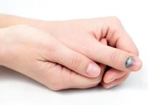 острая травма ногтей