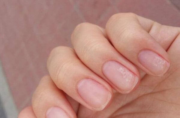 микротравмы ногтя